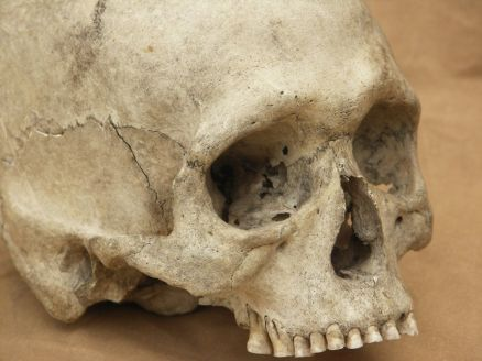 Pictures Of Human Skull